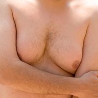 Mannelijke-borsten